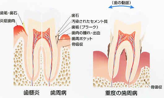 虫歯や歯周病について、知って下さい